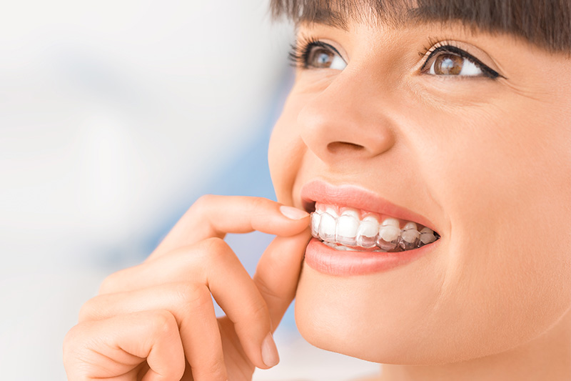 Floss N Gloss Dental Invisalign in Des Plaines