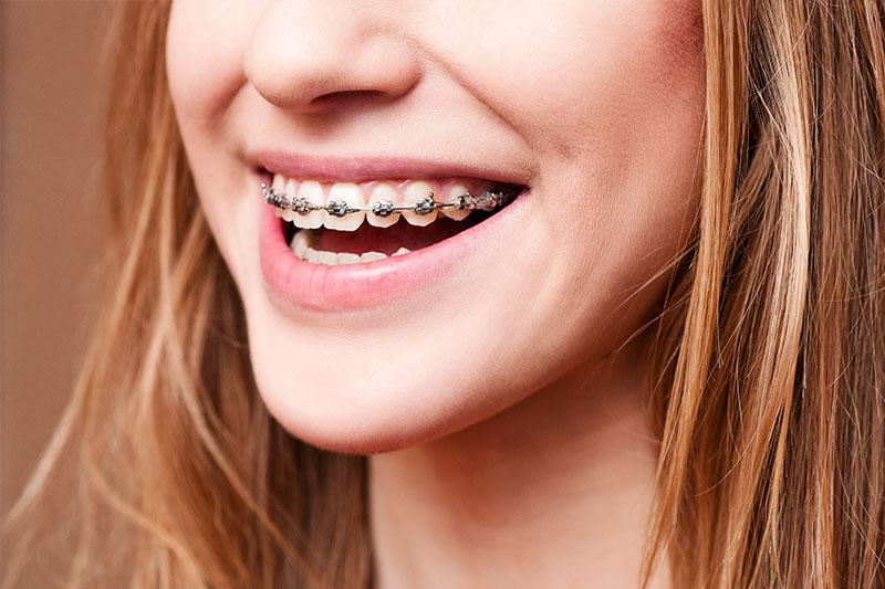 Des Plaines Orthodontics